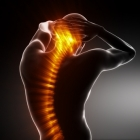 Gene Identified For Back Pain